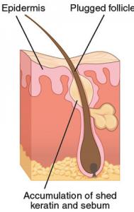 Akne (kviser) hos voksne mennesker