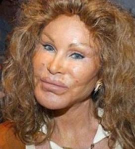 Når kosmetiske inngrep går galt…